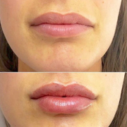 Cosmetic Treatments - Regent Street Clinic™
