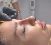Non Surgical Treatments - Regent Street Clinic™